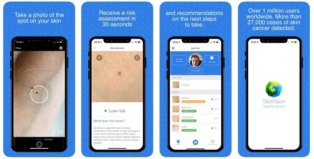 SkinVision - Detect Skin Cancer