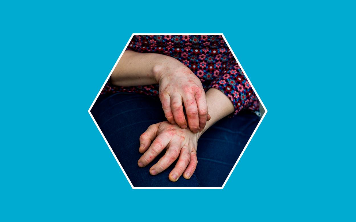 como-controlar-la-dermatitis-atopica