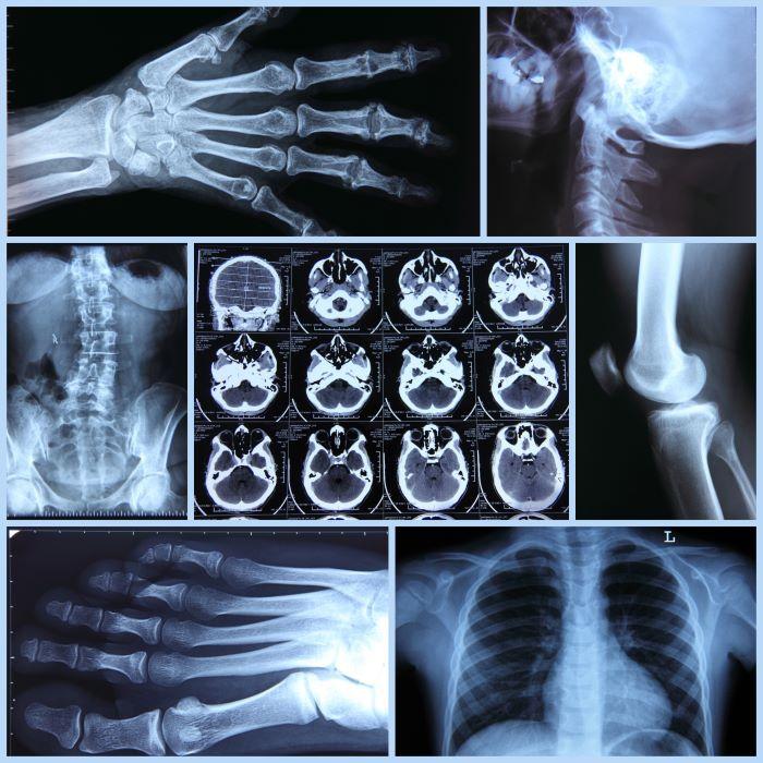 enfermedades óseas